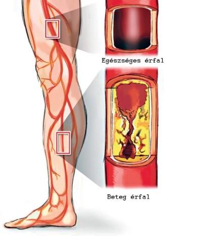 magas vérnyomás szén-dioxid kezelés gyógyító magas vérnyomás
