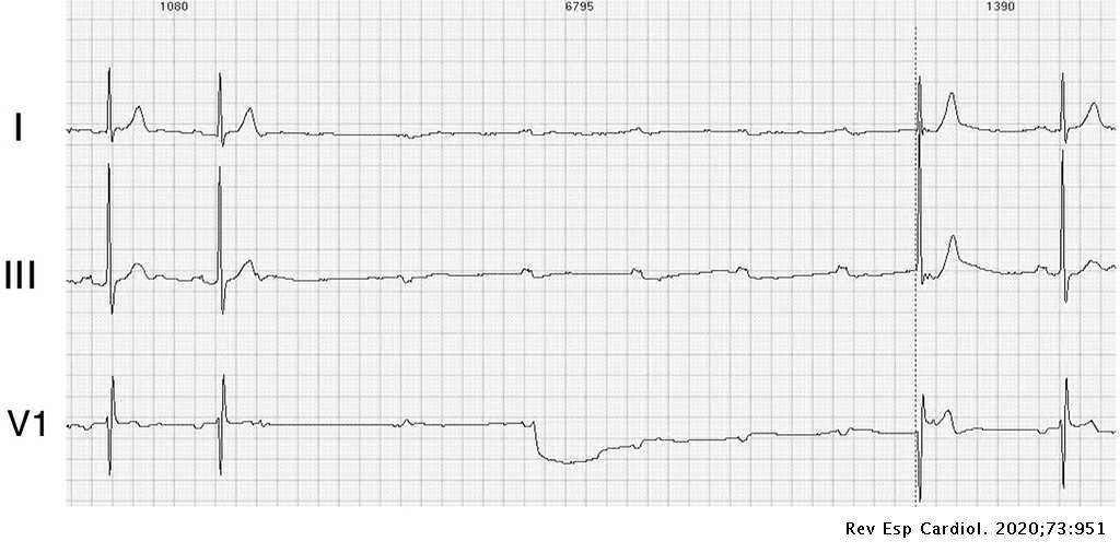 cardiogram hipertónia