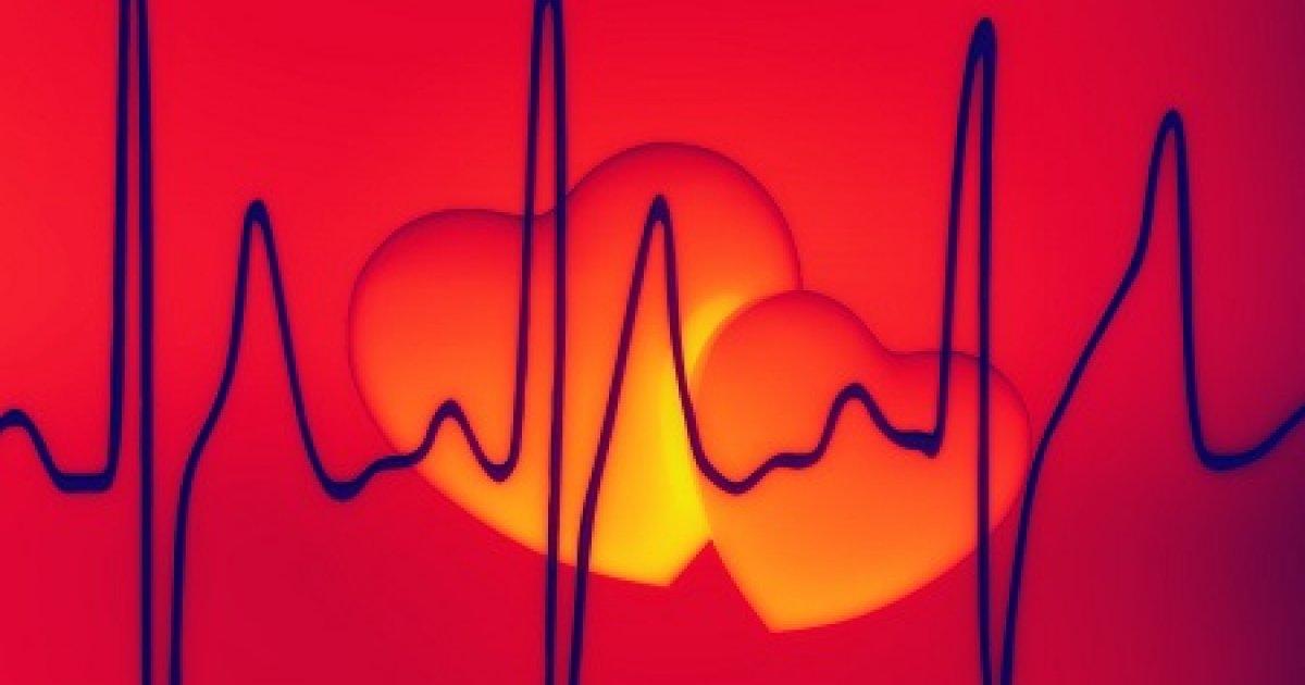 tachycardia és magas vérnyomás milyen gyógyszereket szedjen fogyatékosság magas vérnyomás 3 fok