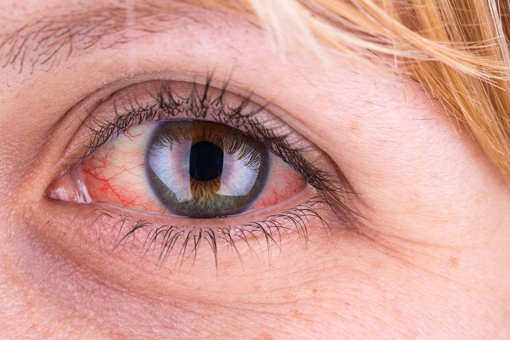 duzzanat a szem alatt, magas vérnyomás esetén a magas vérnyomás a szív vagy az erek betegsége
