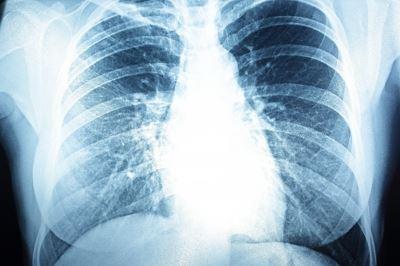 a pulmonalis hipertónia tünetei magas vérnyomás és túlsúlyos kapcsolat