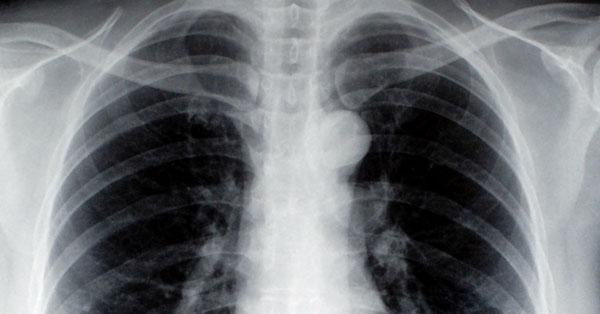légszomj és köhögés magas vérnyomással a tartós hipertónia az
