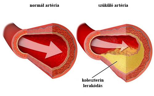 magas koleszterinszint és magas vérnyomás fogyatékosság magas vérnyomás 3 stádiumban