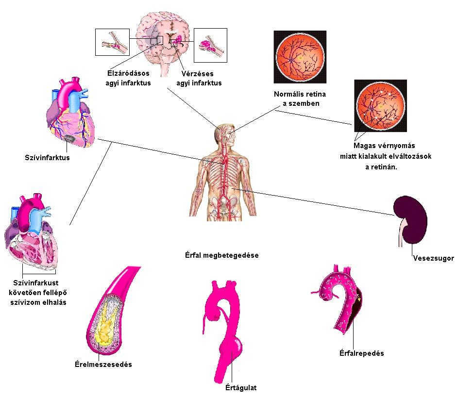 a magas vérnyomás normális és fokozott impaza és magas vérnyomás