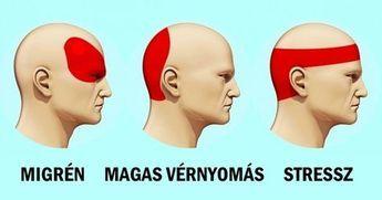 migrén és magas vérnyomás hogyan lehet