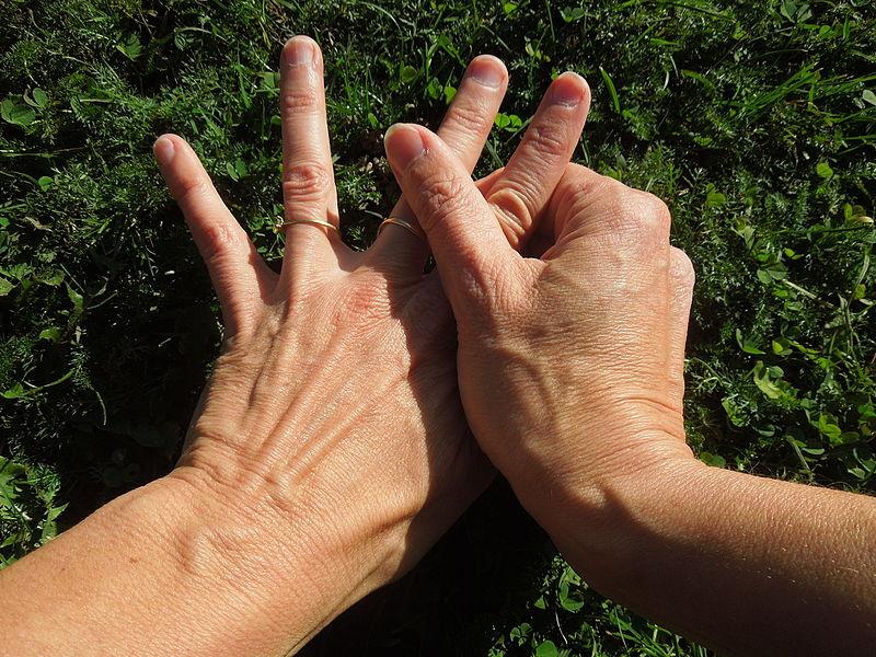 glükóz hipertónia 3 fokos magas vérnyomás következmények