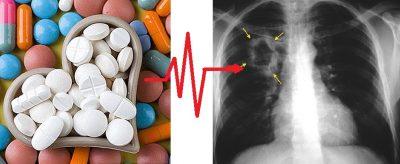 köhögés magas vérnyomáscsökkentő tablettáktól
