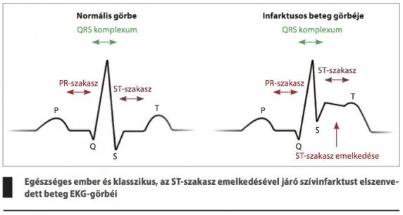 2 és 3 fokos magas vérnyomás különbségek magas vérnyomás nitroglicerin