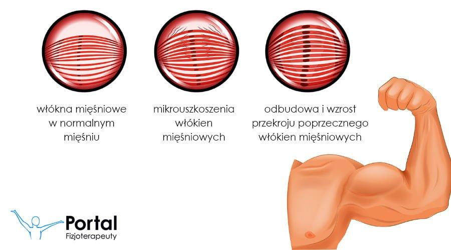 hipertóniával járó lvp hipertrófiája