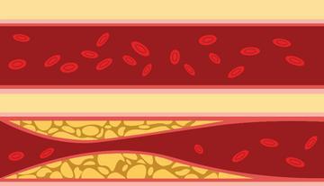 a magas vérnyomás gyógynövényes kezelése