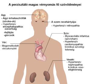 magas vérnyomás 2 fokú gyógyszerek kezelése kórtörténet 3 fokozatú magas vérnyomás