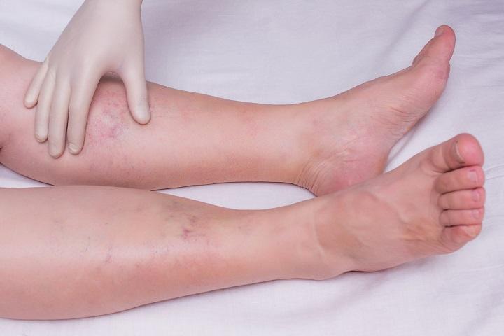 magas vérnyomás a lábak zsibbadása