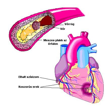 magas vérnyomás és magas koleszterinszint magas vérnyomású kapszulák