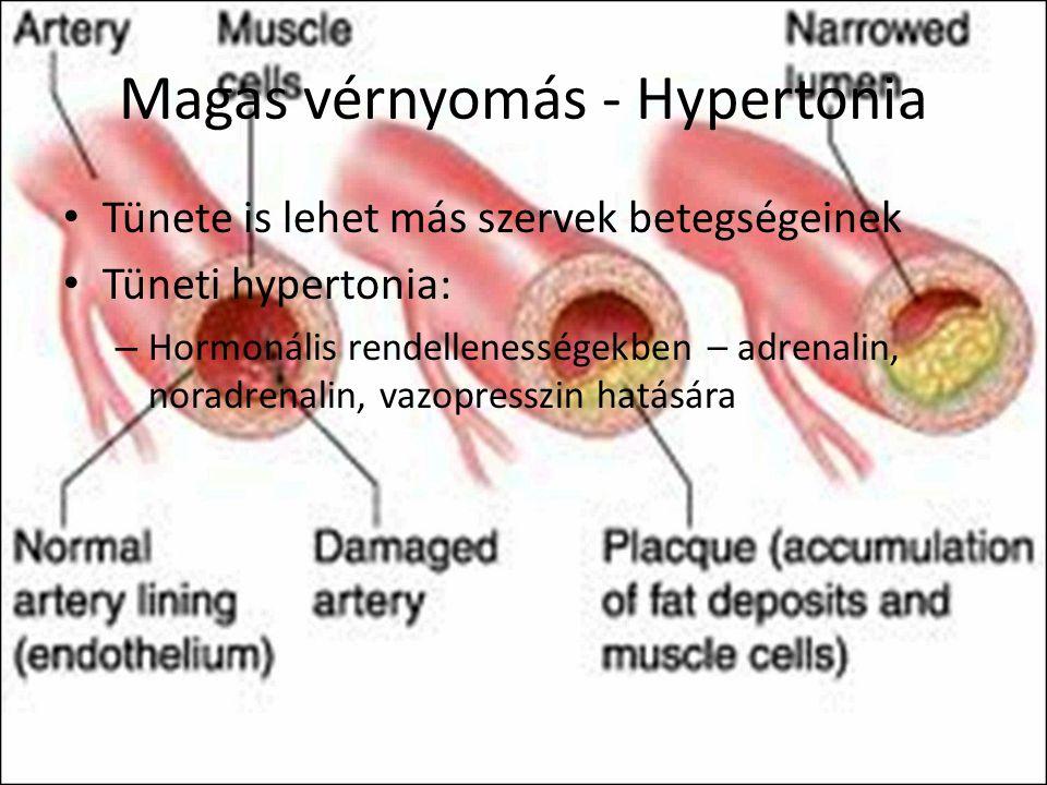 tágult erek hipertónia hogyan választják ki a gyógyszereket a hipertónia változásának gyakorisága alapján