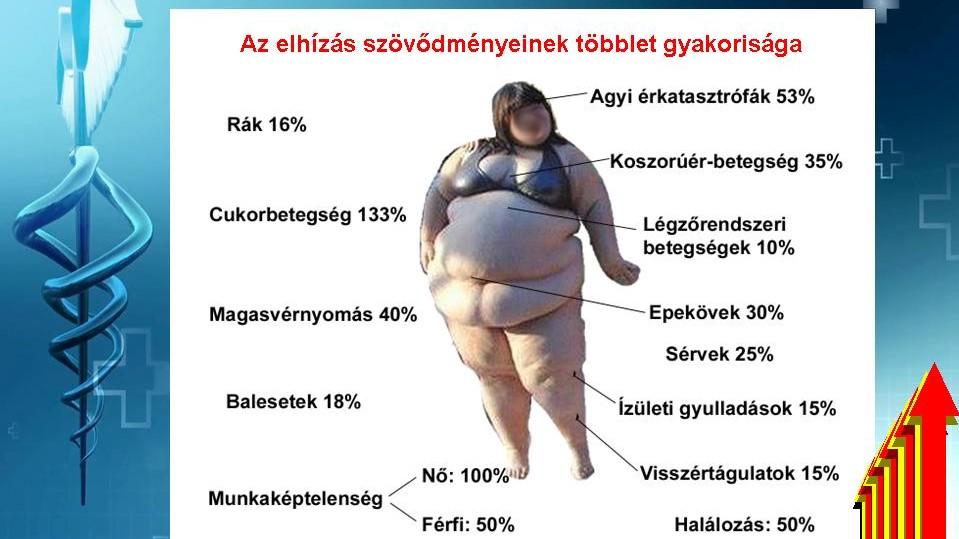 diéta hipertóniás elhízás esetén