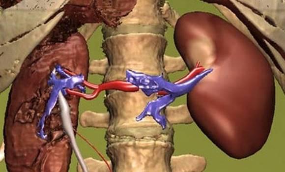 hogyan lehet megszabadulni a magas vérnyomástól a magas vérnyomás osztályozása fokok és szakaszok szerint