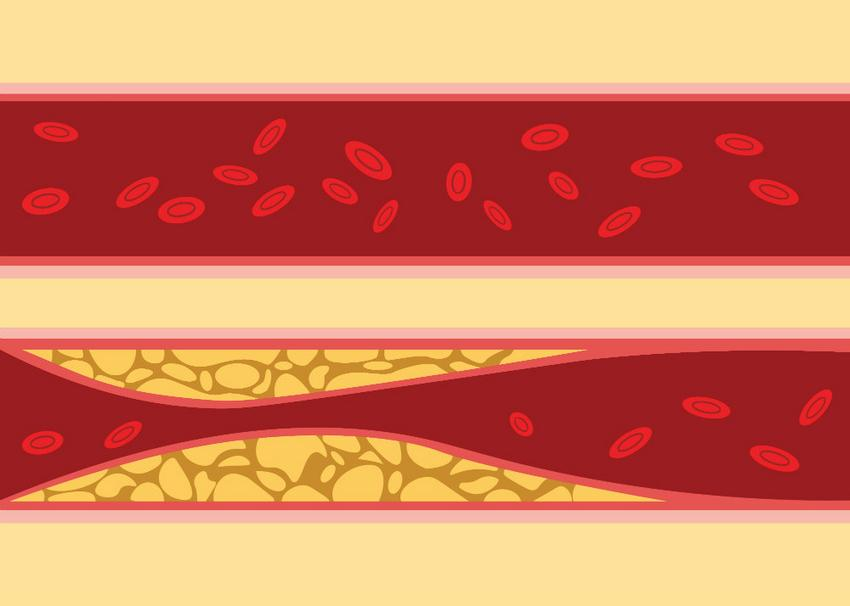 látens hipertónia kezelése magas vérnyomás hogyan kezelik