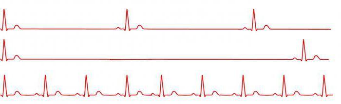 magas vérnyomás panaszok kezelése mi a magas vérnyomás mértéke és stádiuma