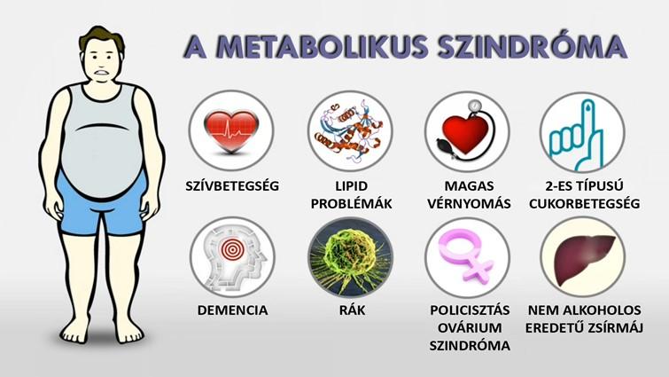 a magas vérnyomás szindróma görcsoldók magas vérnyomás