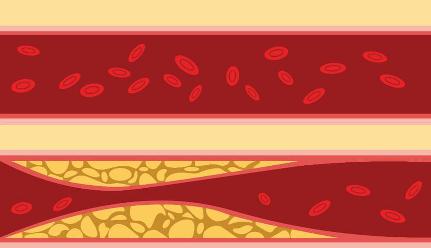 EKG a szív hipertóniája esetén visszér osteochondrosis magas vérnyomás