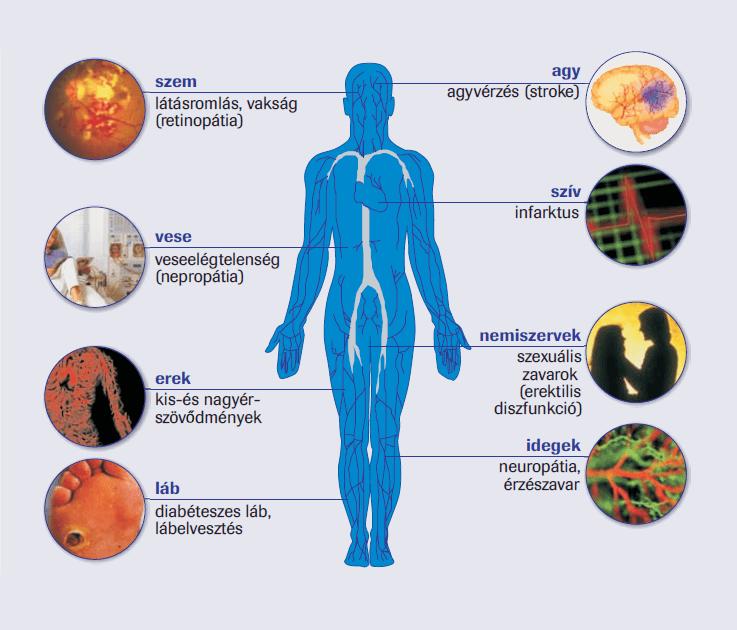 magas vérnyomás kockázati csoport a magas vérnyomás okai és azok kiküszöbölése
