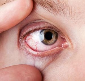 a magas vérnyomásban szenvedő szem szövődményei