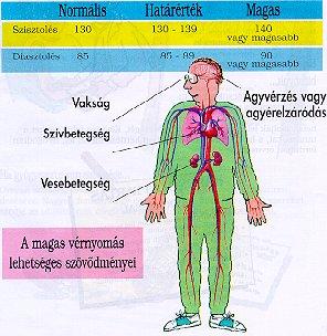 magas vérnyomás a naptól típusú légszomj magas vérnyomással
