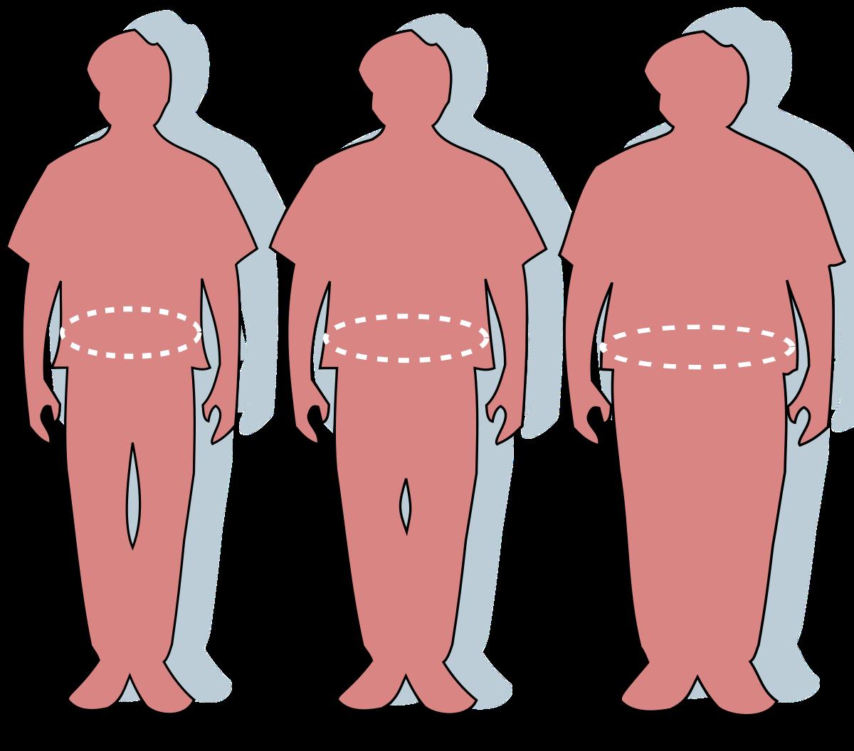 Magas vérnyomás - A lakosság 20 százaléka nem tudja, hogy beteg