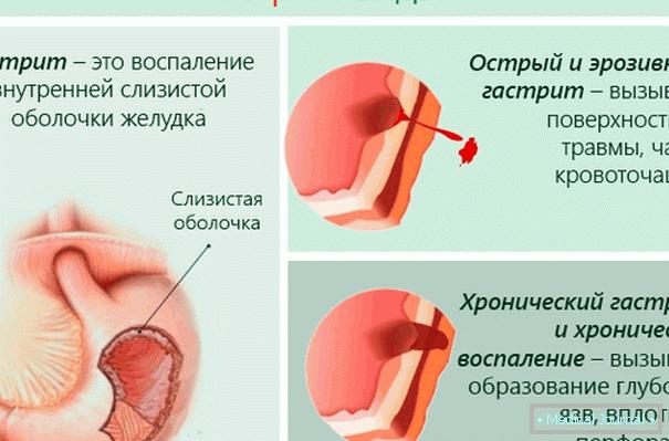 kezelési rend a 2 fokozatú magas vérnyomás esetén menü magas vérnyomás esetén 2 fok